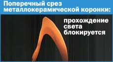 Металлокерамическая коронка