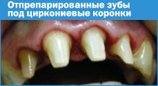Отпрепарированные зубы подциркониевые коронки