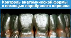 Контроль анатомической формы спомощью серебряного порошка