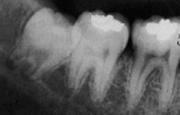 Удаление зуба мудрости — верное решение.