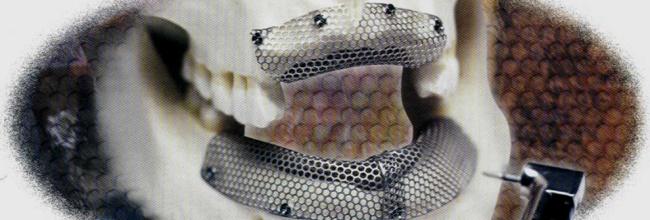 Установка титановых сеток с посадкой — Реконструкция альвеолярного гребня 1